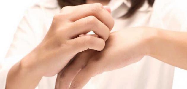 التخلص من جفاف جلد اليد