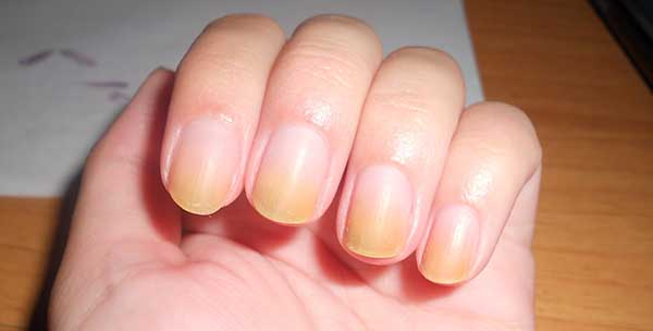 علاج اصفرار الأظافر