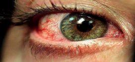 اعراض مرض الضمور البقعي
